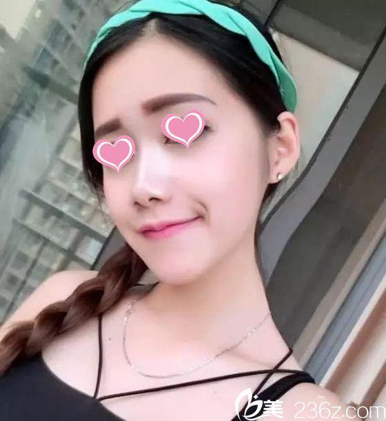 宜春华美周绍龙硅胶隆鼻+垫下巴手术真人案例分享