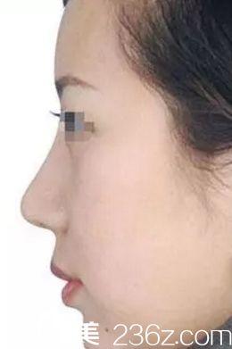 长春鼻综合手术哪里好?来看一下长春卢立平鼻综合案例你就知道了