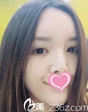 都说南昌美伊尔赵艳平医生做双眼皮还有垫下巴手术很厉害,本人亲身体会之后真觉得很厉害