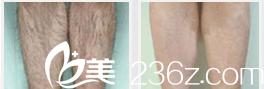 欣赏胡可冰爽雪肤零感脱毛效果你看北京玛丽妇婴医院脱毛技术如何