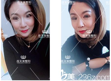 在南京连天美体验了堪比乔雅登效果的艾莉薇玻尿酸 找对了赵其中医生苹果肌和太阳穴案例效果很赞