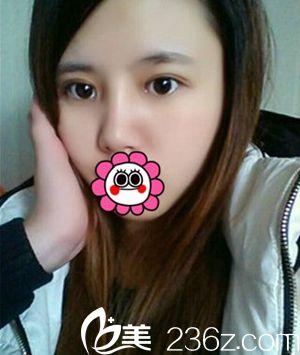 单眼皮鼻子塌?看看妹子在桂林星范做了隆鼻和双眼皮手术后的效果吧