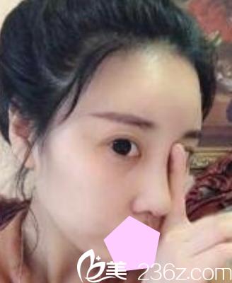 看了我找运城华美刘安堂做的隆鼻失败修复效果,就知道刘安堂做鼻综合怎么样了?