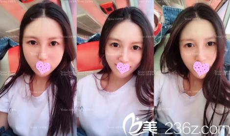 大连艺星90后护士分享她找刘洲慰主任做自体脂肪填充全脸一个月后效果