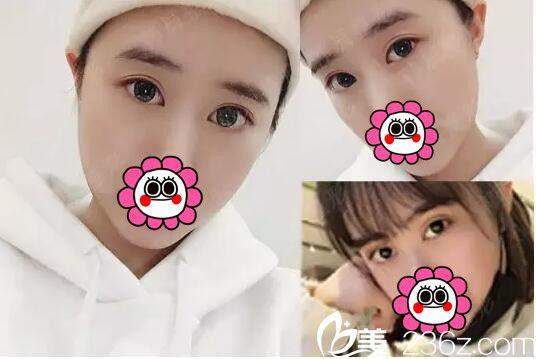 只是在南京韩辰让王文医生开了内眼角做了韩式全切双眼皮 竟然从土味少女变身白富美