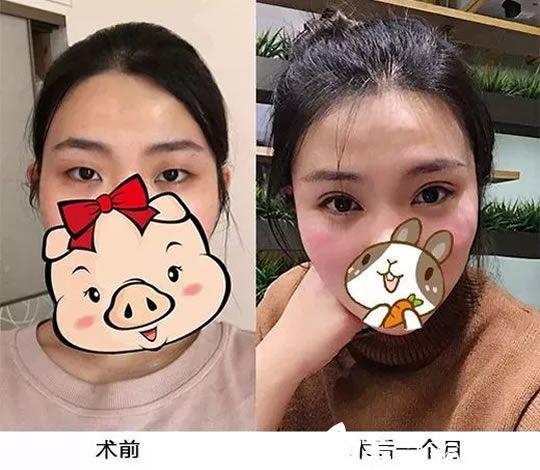 杭州有名的徐少骏整形好不好 这里有他为悦可整形医院护士做双眼皮真人案例