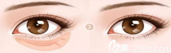 长春长青丽人祛眼袋手术