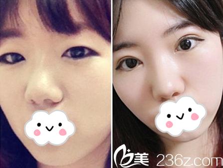 韩国清潭优和清潭第一是同一家医院吗?哪家更擅长双眼皮修复?