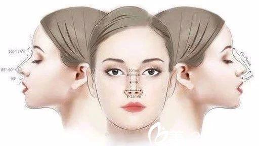 长春长青丽人隆鼻多少钱?鼻综合手术18900元起就能拥有