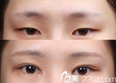 六安智颜星范全切双眼皮+开内眼角眼综合前后对比图