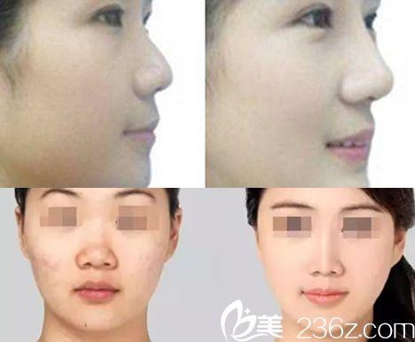 六安智颜星范假体隆鼻前后对比图