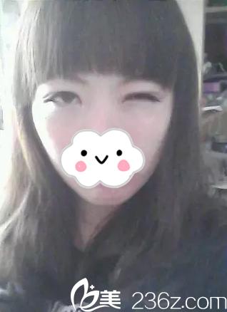 找衡阳美莱温科磊做双眼皮一个月,真的害怕有点变回单