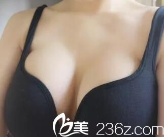 上海九院隆胸技术好不好?曹卫刚和余力隆胸案例对比