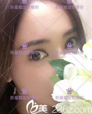 客观欣赏北京奥斯卡刘风卓双眼皮不协调眼修复案例希望对你有用