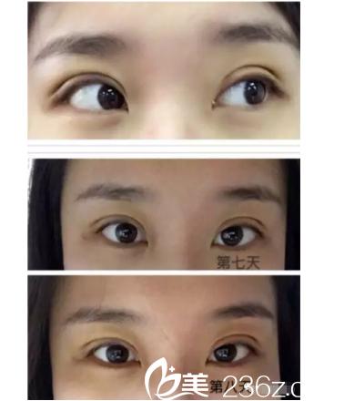 南京六博黄金龙医生做左眼提肌+7.2mm扇形自然款双眼皮术后十天恢复全过程