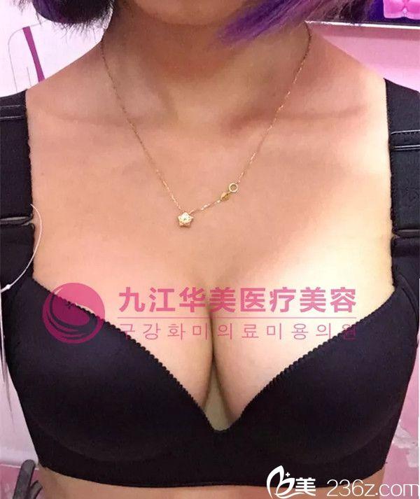 九江哪个整形医院做隆胸手术好?分享下九江华美詹领给我做自体脂肪隆胸的恢复效果吧