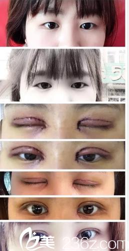 潍坊市人民医院美容整形科做的双眼皮和开眼角手术,做的时候特别忐忑,容易紧张巴克主要防止色素沉着,对增生没效果