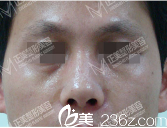 歪鼻多年终于让我在北京正美释怀选择郑永生改善是因发小隆鼻效果好
