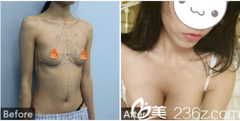 南宁华美赵丽红做的假体隆胸术后一个月对比