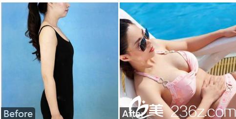 南宁华美赵丽红假体隆胸案例术后一年效果对比