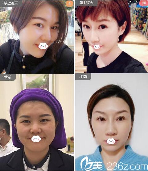 南宁华美刘真俊做的线雕隆鼻案例对比图