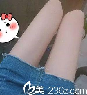 大粗腿变大细腿,你只差南昌红苹果张洁玲医生的吸脂瘦腿手术
