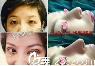 北京京都时尚医疗美容诊所案例