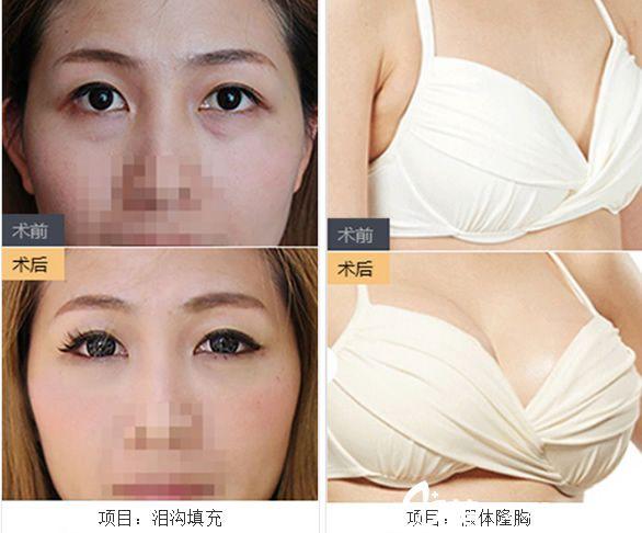 宣城诺诗雅医疗美容医院院长华金环泪沟填充+假体隆胸案例前后对比图