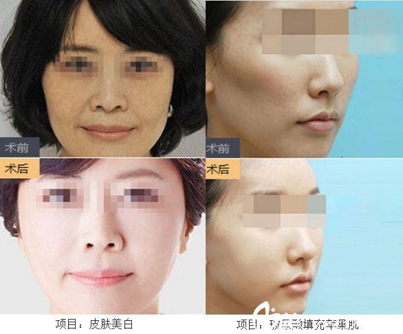 宣城诺诗雅杨民锋皮肤美白+玻尿酸填充苹果案例对比图