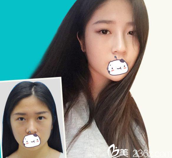注射玻尿酸隆鼻+BOTOX瘦脸案例效果对比图