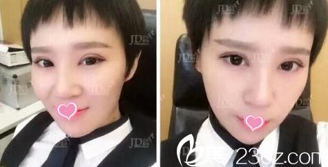 北京京都时尚医院罗忠振给我做切开双眼皮+开眼角有3个月效果美美哒