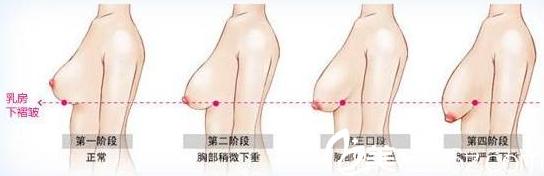 长春亚韩乳房下垂矫正