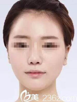 想了解柳州仁美杨克做面部自体脂肪填充效果好吗?看小何术后2个月的变化