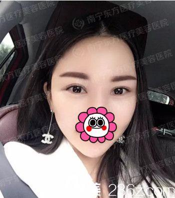 只是在南宁东方找刘波做了个双眼皮手术20天 我就拥有了翘睫魅眼