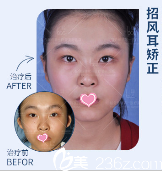 北京联合丽格医疗美容医院耳修复案例
