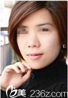 在南宁科之美做鼻综合手术后为我解决了鼻孔朝天的问题