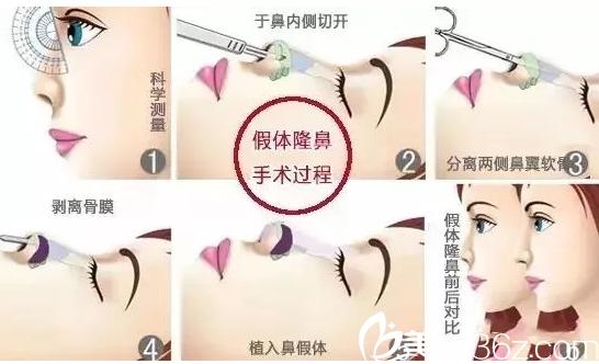 柳州医美鼻综合手术案例