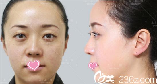 北京上上相医疗容诊所脂肪填充法令纹等效果