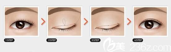 韩式微创双眼皮手术方法