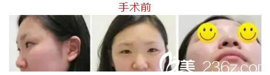温州克拉美整形外科门诊部魏广运术前照片1