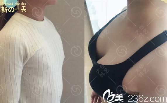 成都大华韩艺朱奎假体丰胸术前术后对比