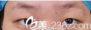 济南韩美整形美容医院靖永军术前照片1