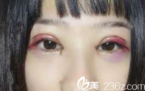 合肥禾丽整形医院割双眼皮开内眼角术后第3天照片