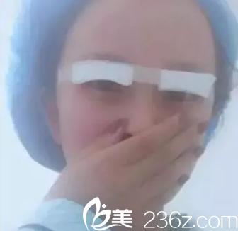 刚做完双眼皮整形手术