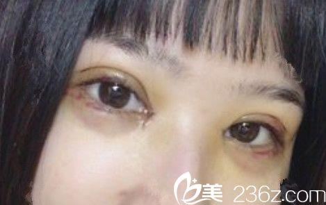 全切双眼皮+开眼角术后第5天恢复效果