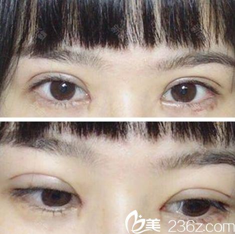 全切双眼皮开内眼角术后第10天拆线后照片