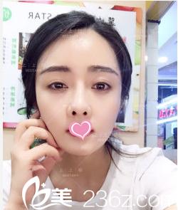想知道北京上上相脂肪修复技术如何来看郑楚蓉给我做面部脂肪填充修复第35天效果