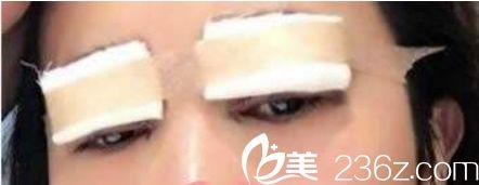 冷敷和热敷有利于双眼皮术后快速消肿