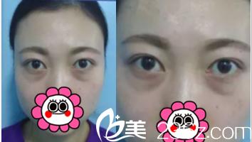北京解放军309医院整形美容烧伤修复中心张亚洁术前照片1