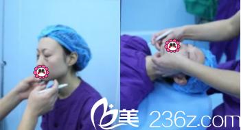 北京解放军309医院整形美容烧伤修复中心祛眼袋设计照